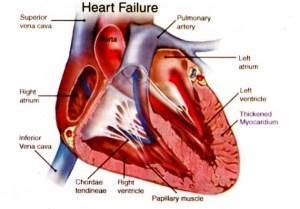 gagal-jantung